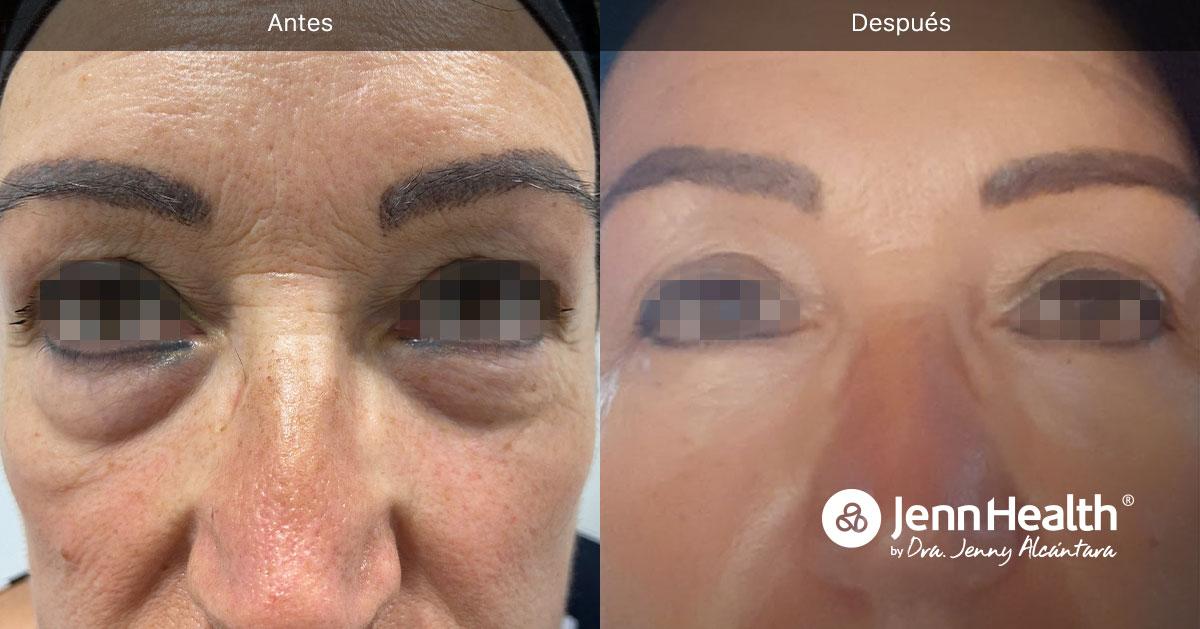 tratamiento para eliminar ojeras del rostro